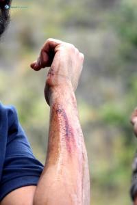 32) Battle Scar